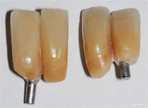 A Two Stage Placement of Mandibular Lateral Incisor